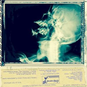 Vinylized - Verso2